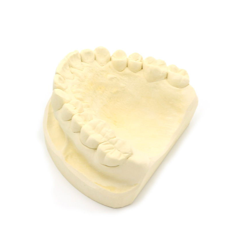 SPORTBUC envíanos tu impresión dental